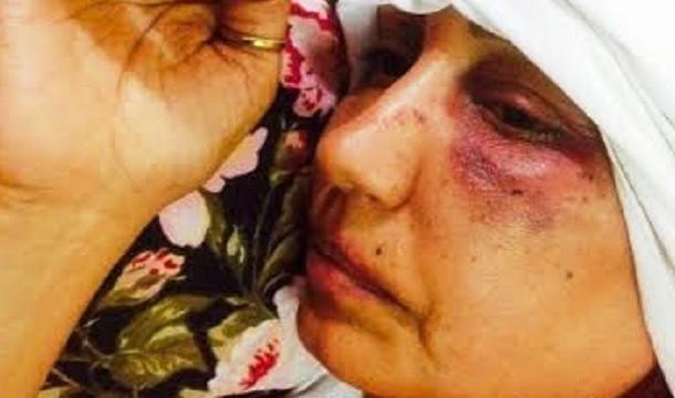 دعوة وزارة الداخلية للتحقيق في الاعتداء على صحافية